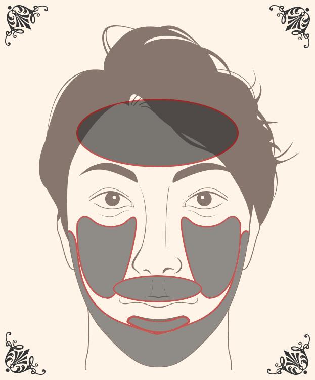 髭+脱毛 SETの脱毛1